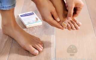 Использование пластыря от грибка ногтей на ногах