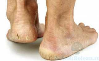 Образование грибка на пятках ног