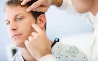 Поражение челюстно лицевой области актиномикозом. Методы лечения заболевания.