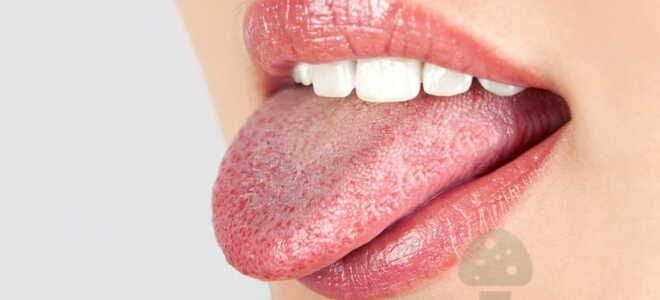 Клиническая картина распространения грибка на языке