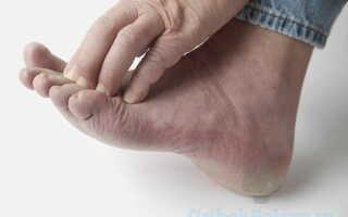 Образование грибка ногтей у человека на ногтевой пластине