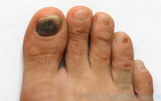 Выясняем чем лечится грибок ногтей на ногах