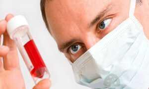 Сдача анализа крови на грибок в организме