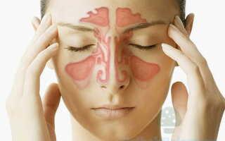 Диагностика и лечение мицетомы у человека