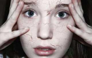 Как распознать сухую себорею и как с ней бороться