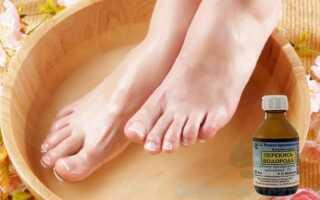 Лечение грибка ногтей перекисью водорода, как основной народный способ лечения