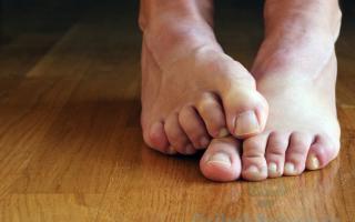 Как избавиться от грибка между пальцами ног