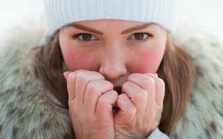 Появление холодового дерматита в зимнее время года: способы лечения и профилактики