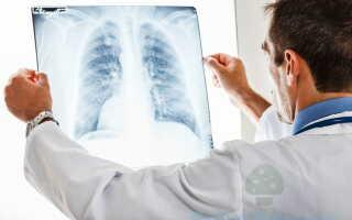 Образование грибка в лёгких