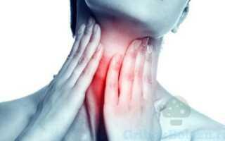 Заболевание горла как следствие грибковой ангины