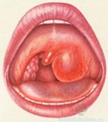 Флегманозная ангина