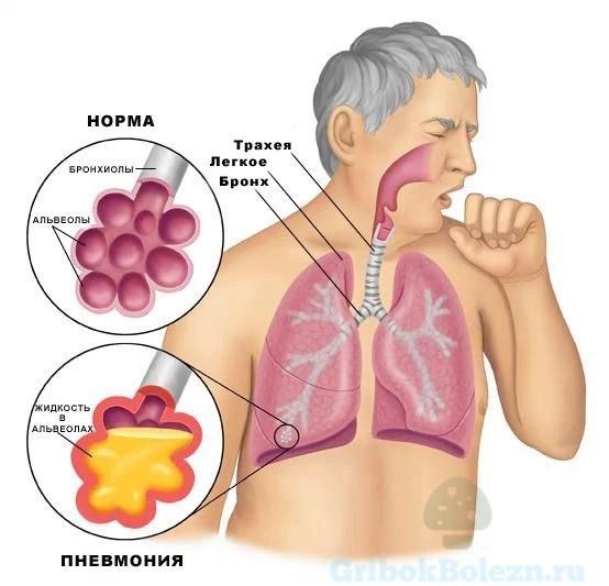 Пневмония лёгких
