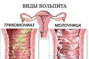 молочница или трихомониаз