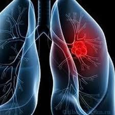 Аллергический бронхолёгочный аспергиллёз