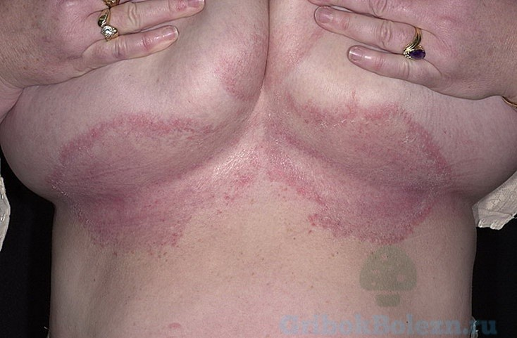 Как устранить опрелость под молочными железами: лечение болезни