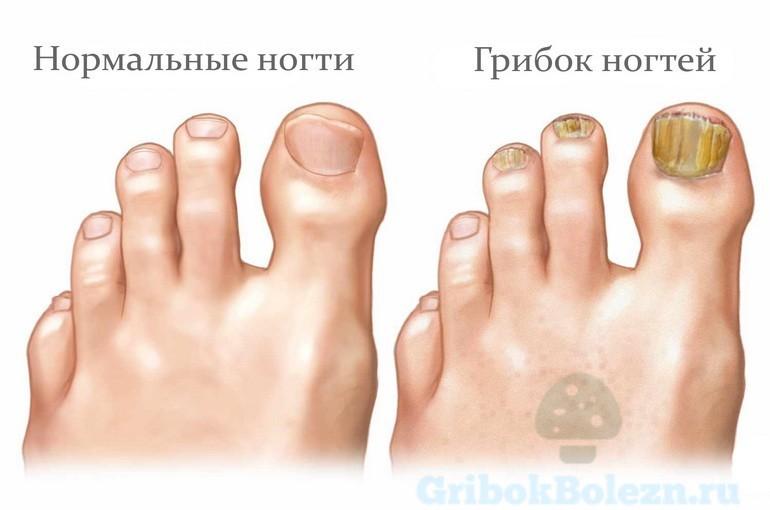 Микотическое поражение ногтя