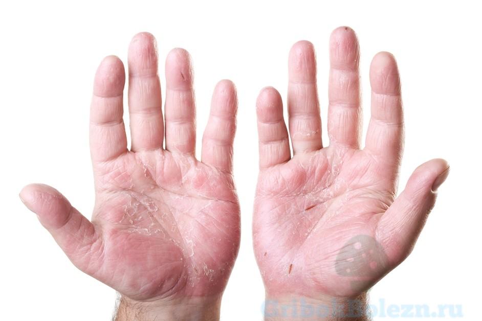 грибок рук