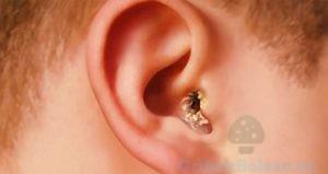 Налет в ушах