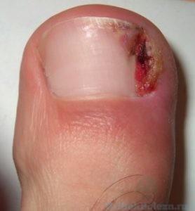 грибок пальца