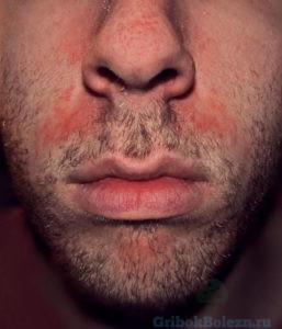 грибок бороды