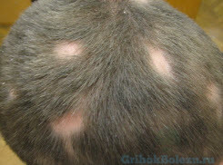 Микроспория участками на голове