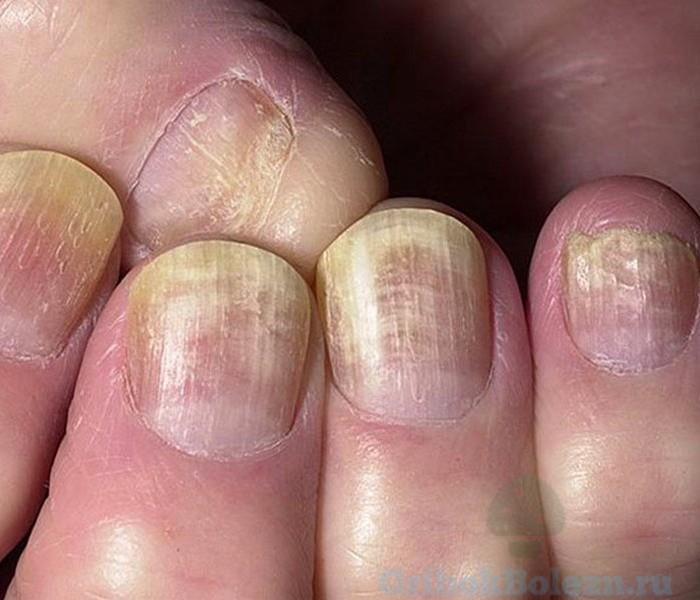 покраснение ногтя
