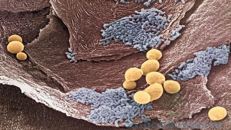 паразиты в желудке