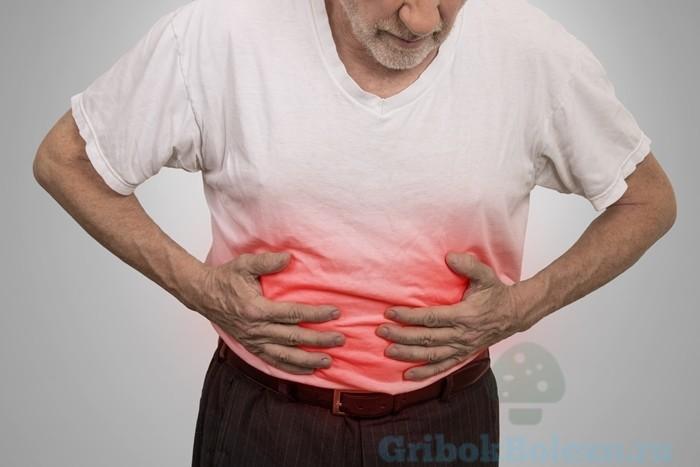 Грибковые кишечные инфекции это thumbnail