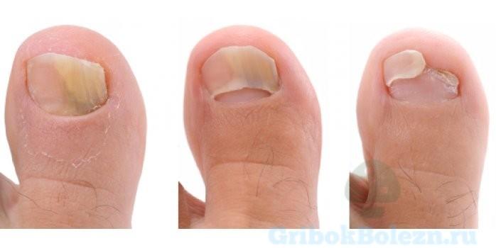 формы ногтя