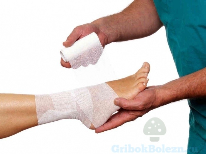 лечение ног