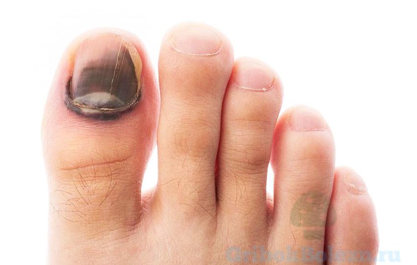 Что делать если сошел ноготь на ноге от грибка