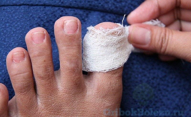 перевязка пальца