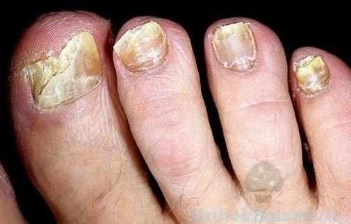 ногти от грибка