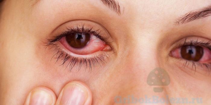 болеют глаза