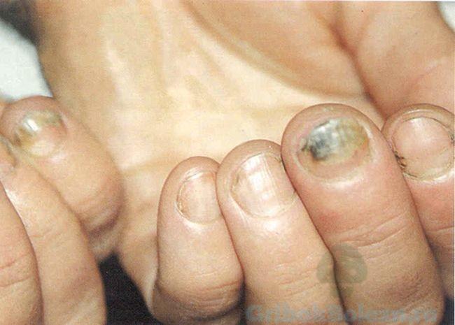 Дрожжевой грибок ногтя