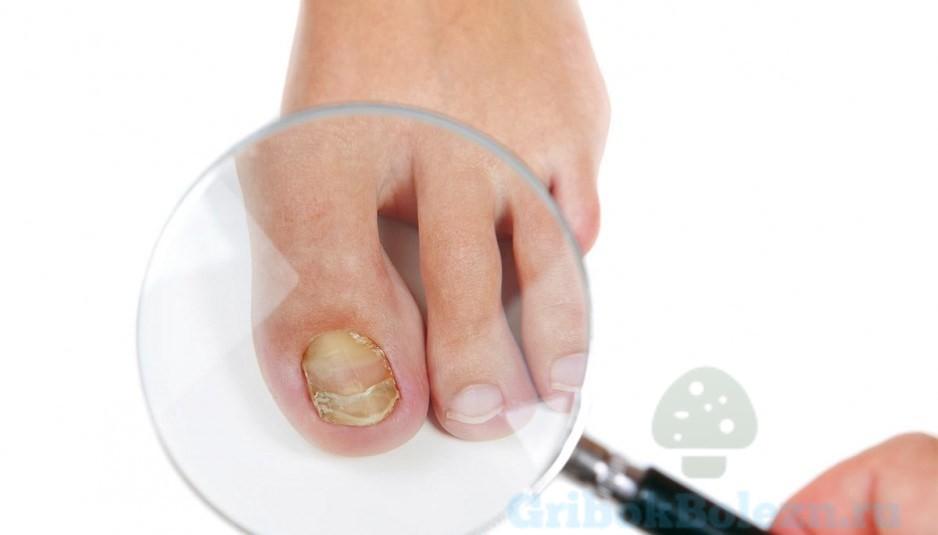 Лучшее способ избавиться от грибка ногтей