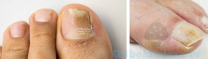Утолщения ногтя причины